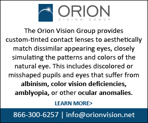 Orion Vision